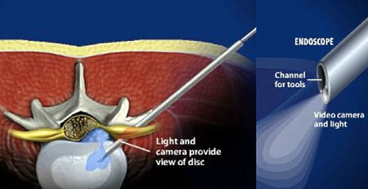Laser Spine Surgery Singapore Spine Center Singapore